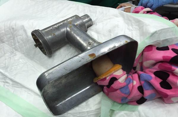 """بسبب إدخال يدها في """"مفرمة"""": رجل يحطم زجاج مستشفى شهير ويتهم إدارته بالإهمال في إسعاف طفلته"""